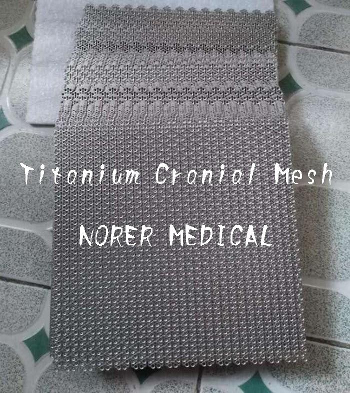 3 titanium mesh .jpg
