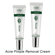 Aloe Vera Pimples and Dark Spot Remover Best Anti Acne Treatment Cream Bulk Sale