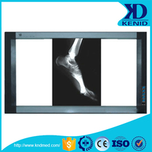 Medical Thermal Led X Ray Film VIewer, Double X Ray Film Viewer with Finest Quality