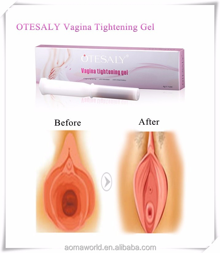 Otesaly Quality Vagina Tightening