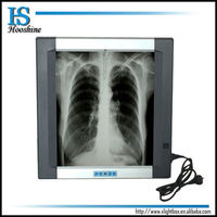 Hot Sale Medical LED X Ray Film Viewer For LED Negatoscope