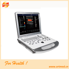 full digital laptop ultrasound scanner