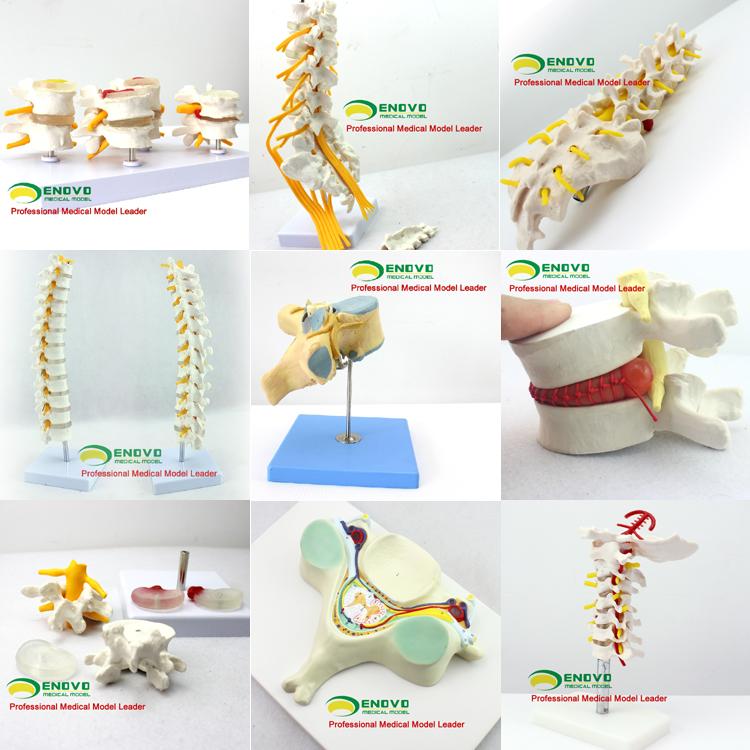 Vertebra04 (12387) Ciencia Médica Profesional Médico Anatomía Life ...