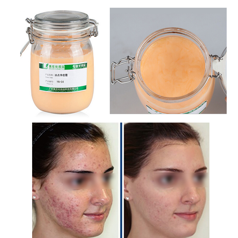 Face Care Acne Scar Removal Cream Acne Spots Skin Care Treatment Stretch Marks Oil Care Acne Treatment Cream