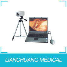 Jiangsu colposcope software machine