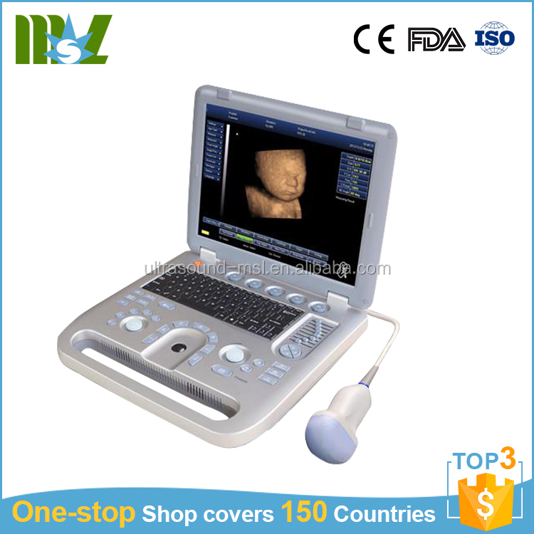 Pregnancy ultrasound machine cost China ultrasound unit