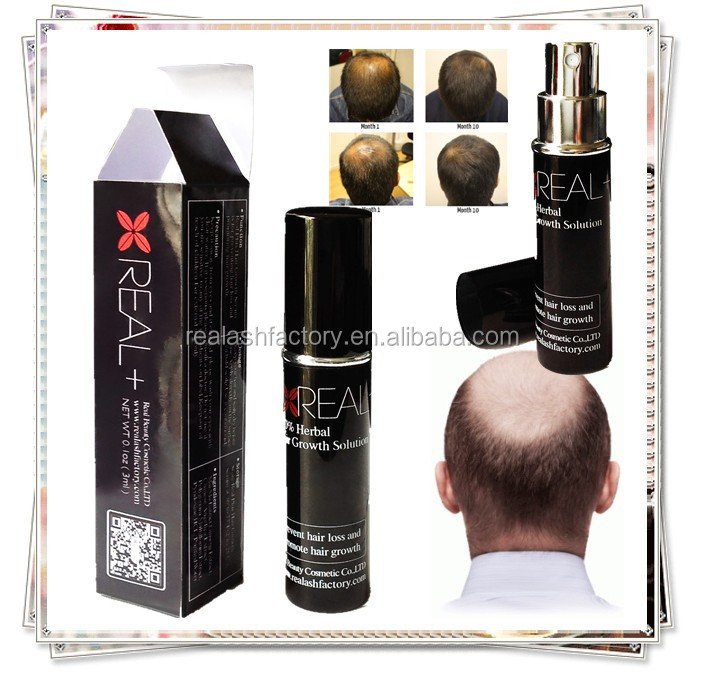 World favorite hair growth tonic suitable for all kinds of hair loss best hair growth spray