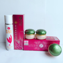 Free Shipping Natural Acne Dark Spot Removal Pearl Whitening And Spots Removing Yiqi Cream Green Cover