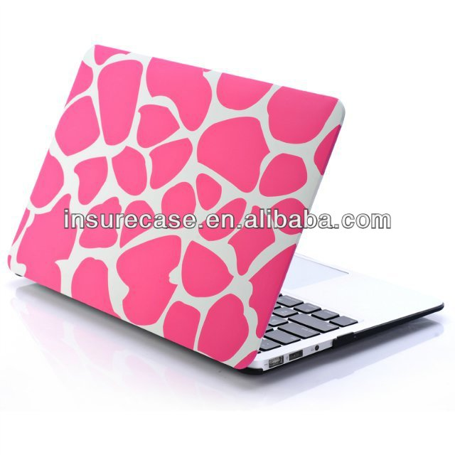 For Macbook air 11 custom case,Lovely Pink custom design Hard Plastic Case for MacBook Air 11 Inch