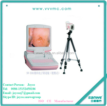 SW3301 Video Portable Digital Colposcope with SD Card/Vagina Pictures Camera