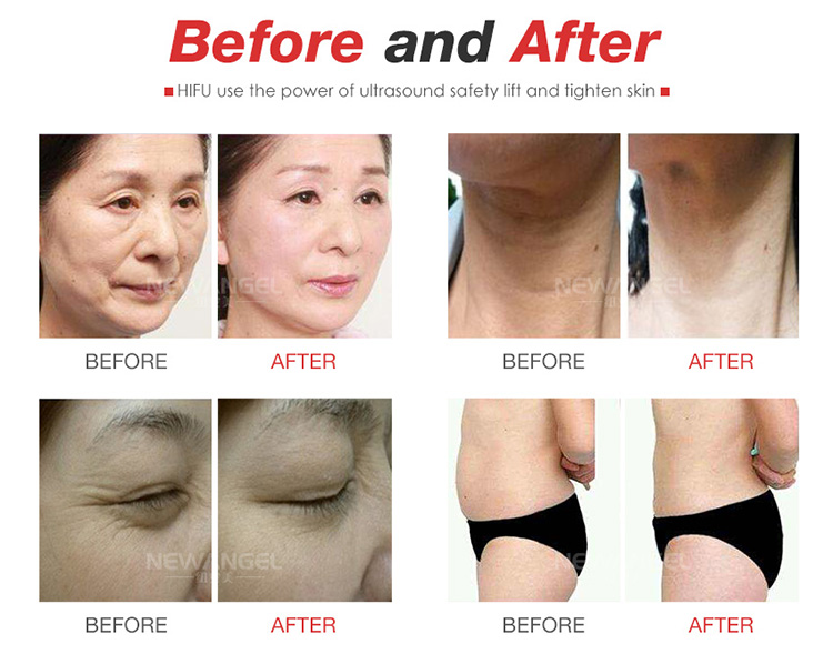 2in1 lipohifu high intensity focused ultrasound hifu wrinkle removal facelifting