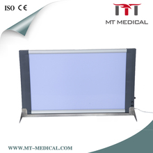 Led Film Viewer Negatoscope X Ray Film Viewer/X-ray Film Scanner