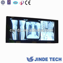 China manufactory produce the LED negatoscope triple bank 3 bank