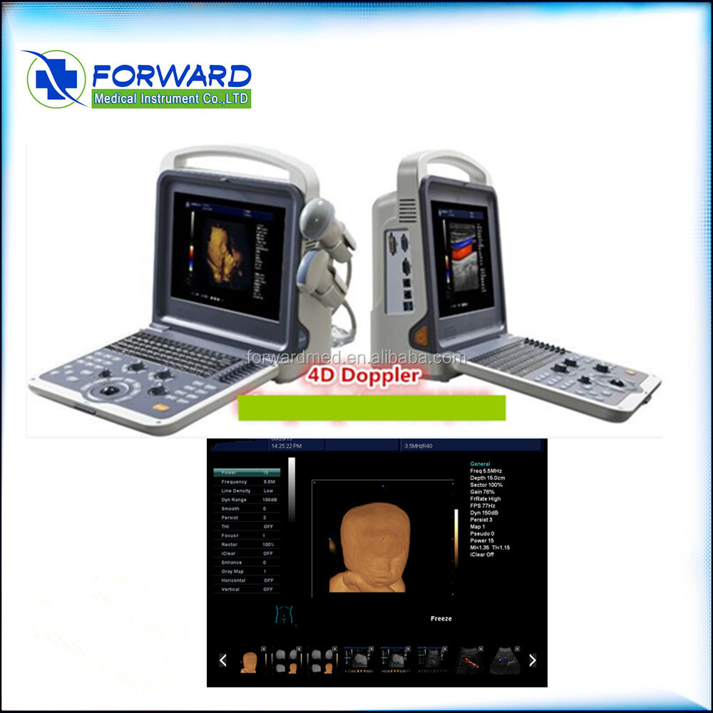 High quality useful portable echo color doppler
