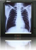 Negatoscope x-ray medical film viewer(good price)