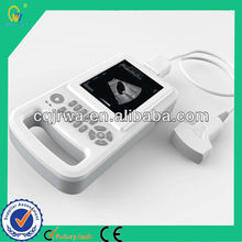 Full Digital Palmtop Handheld Economical Best Selling Ultrasonic Medical Examination Instrument With Li-battery