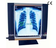 YSX1704 single medical radiography led x-ray film viewer