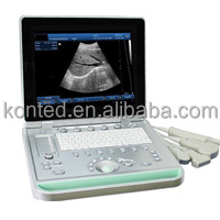 Konted C8 Full Digital B/W Laptop Ultrasound 3d Level Scanner