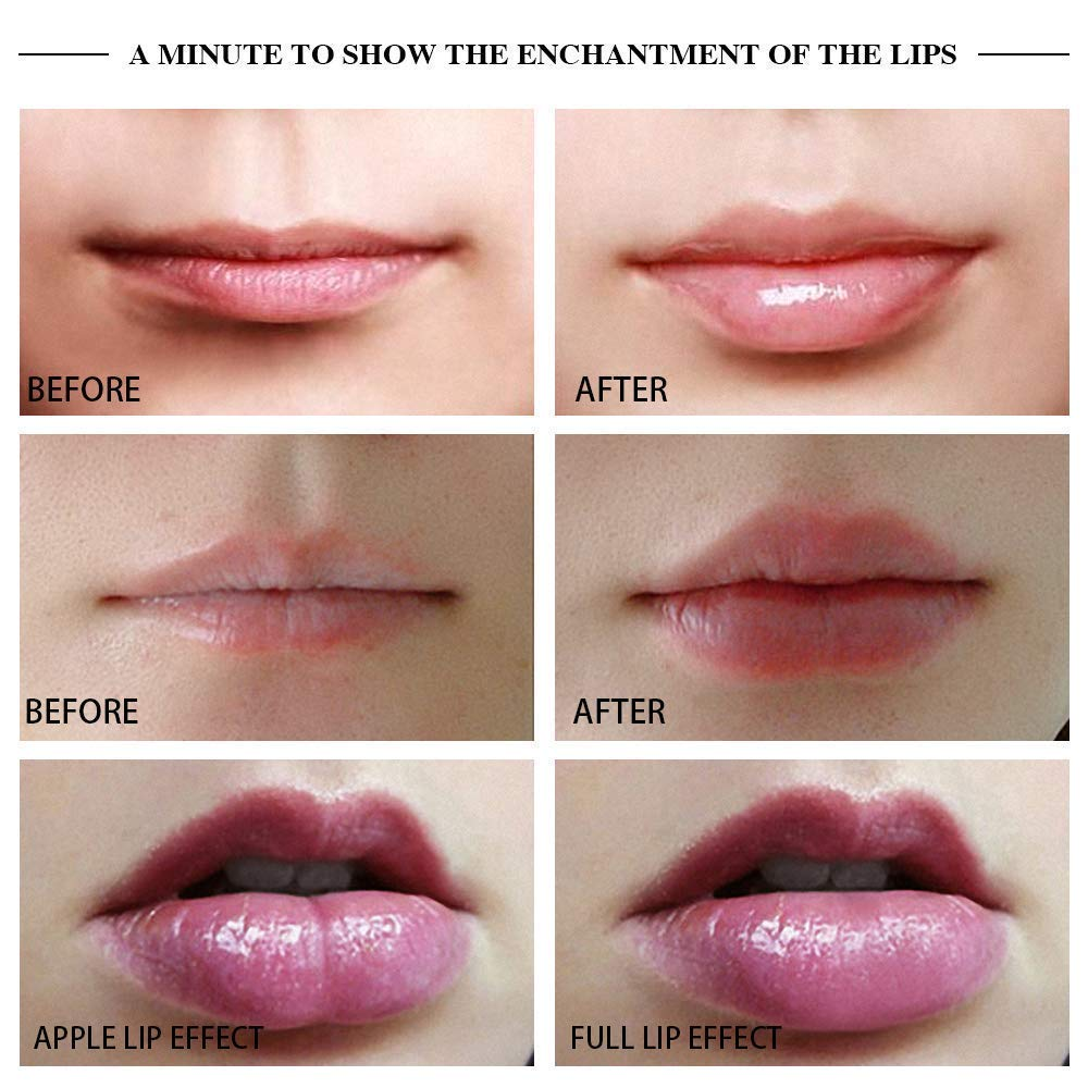 private label silicone electric vibrating lip plumper device enhancer in natural lip plumper for beauty cosmetics