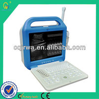 Portable Digital Cheap High-quality Laptop Ultrasonic Machine With Powerful Measurement & Calculation Software Packages