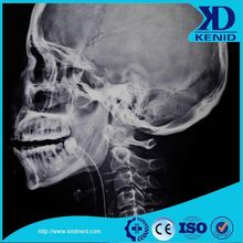 Konica SDP SDQ Japan Xray Medical Dry Laser X-ray Imaging Film