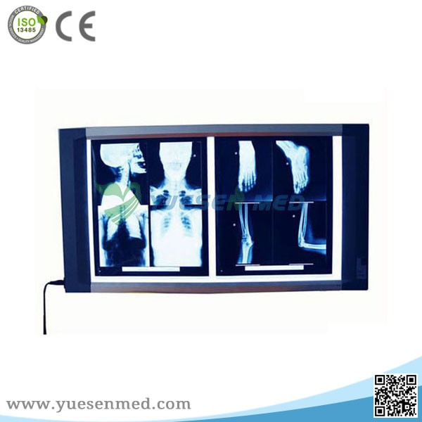 medical double connections portable led x-ray film Viewer