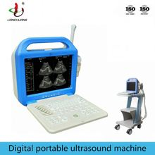 Price of the Affordable Advanced Laptop Ultrasound Machine