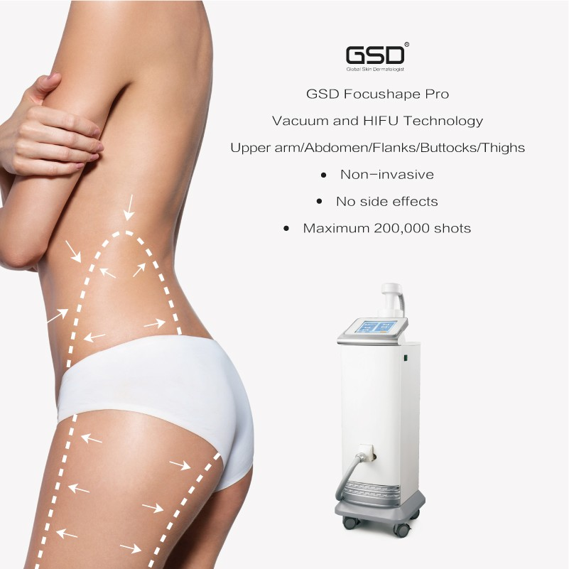 fat removal machine use hifu and cavitation technology for beauty slimming