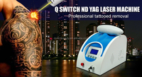 2016 New design laser tattoo removal / nd yag laser machine price(CE approval) DO-T01