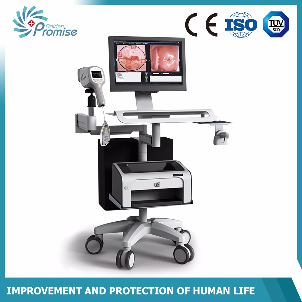 cervix test colposcope camera with high quality