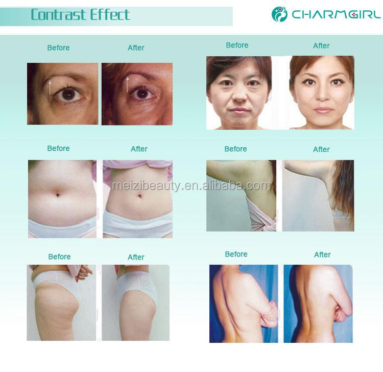 Liposonic for body slimming machine