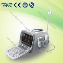 THR-US6602 Portable Medical Diagnostic Equipment