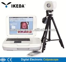 Colposcope Camera/digital medical colposcopy image forming examination system