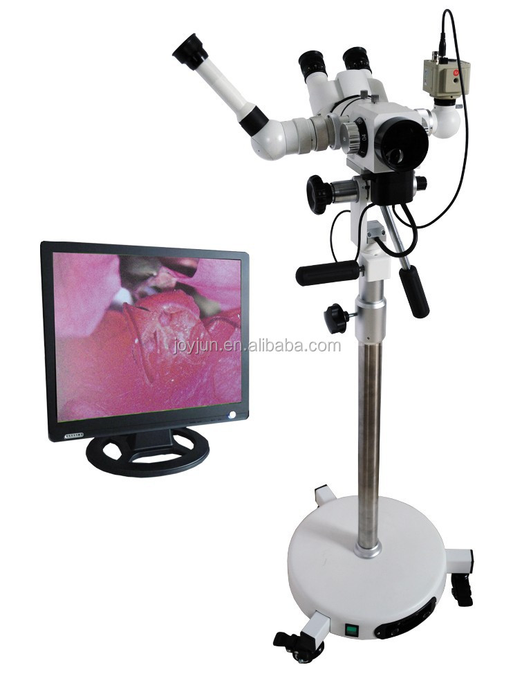 Gynecology digital video colposcope
