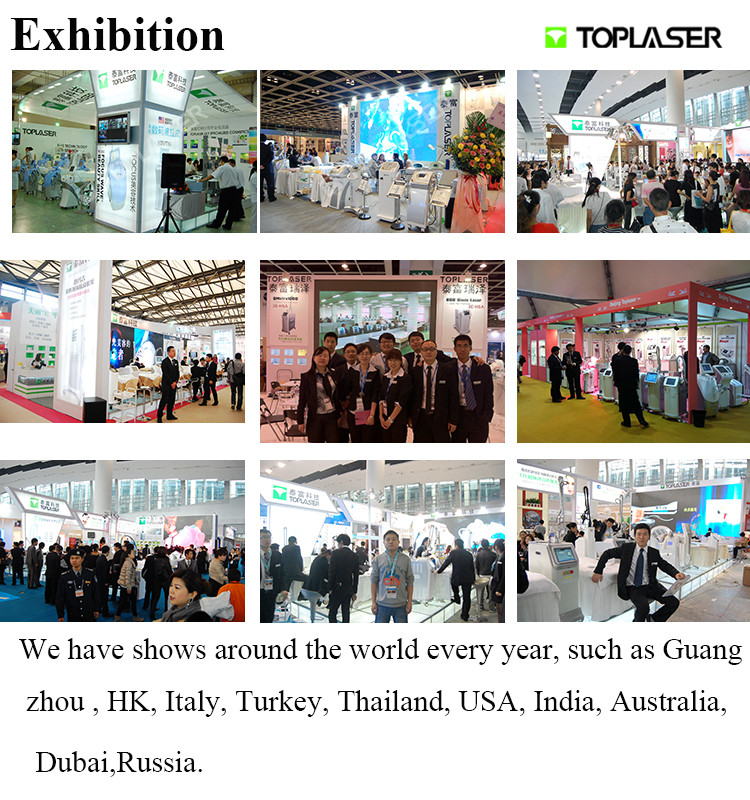 Biggest Promentation Toplaser Q-Switched Nd:YAG Portable Mini Model Pigmentation Tattoo Remover Salon beauty machine