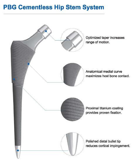 Cementless Joint Replacement Artificial Hip Joint Titanium Prosthesis Implant