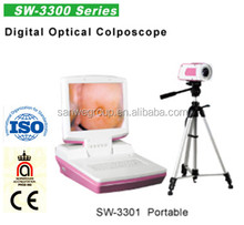 SW3301 Digital Video Colposcope/Manufacture with cheap price/Gynecology Equipment