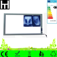 smooth brightness adjustment automatic reaction slim led medical negatoscope film viewer