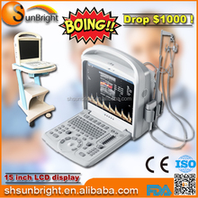 Cardiac Vascular Echocardiography Color Doppler Ultrasound System Echo machine