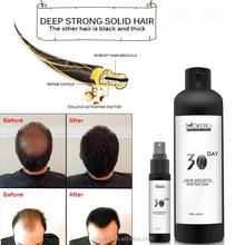 FDA Natural Herbal Private label guaranteed hair loss regrowth tonic oil anti hair loss lotion for baldness