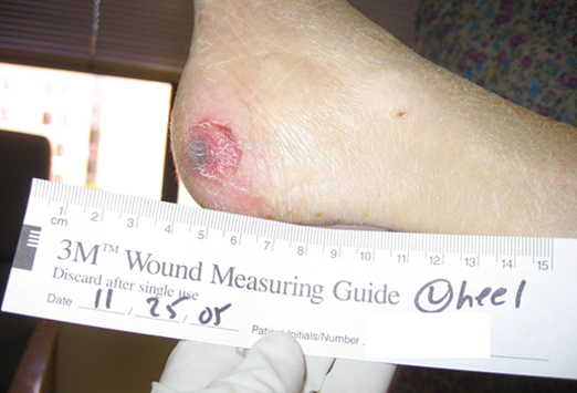 Disposable Tape Measuring Medical For Wound <strong>Measurement</strong>