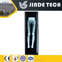 Special X ray viewer , Vertical long view box, orthopedic viewing box LED