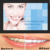 Posts Strong Cover Crest Teeth Whitening Strips, Teeth Bleaching Strips