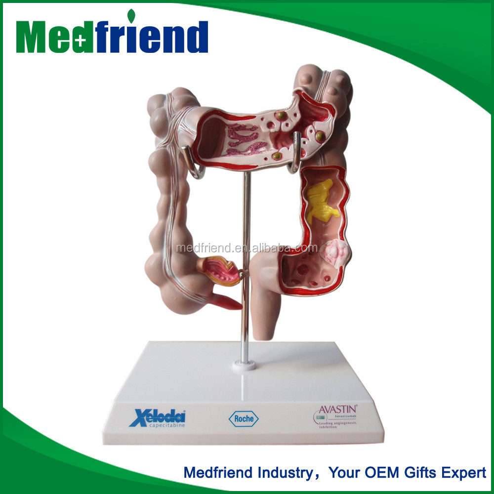 MFM019 Newest Design High Quality Intestines Model