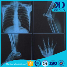 konica sdp sdq sd-p sd-q japan xray medical dry laser x-ray imaging film
