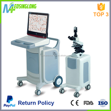 2017 factory High configuration sperm analyzer system , Medical lab sperm analysis