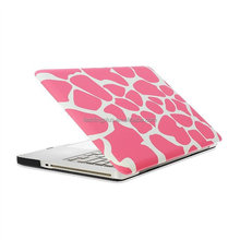 "Rubberized Pattern Hard Case for MacBook Pro, Air and Pro Retina 11.6"" 13.3"" and 15.4"""