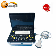 Widely used full digital ultrasound machine/ USB port ultrasound scanner price