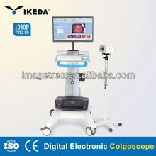 electronic colposcope software/ultrasound doppler scanner