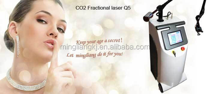 most popular products china CE approval stretch mark removal 100w co2 laser tube